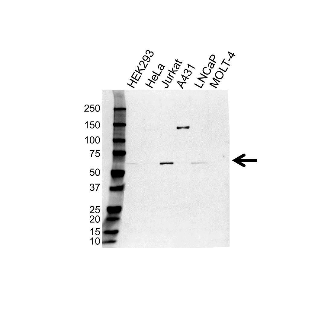 Anti USP14 Antibody (PrecisionAb Polyclonal Antibody) gallery image 1