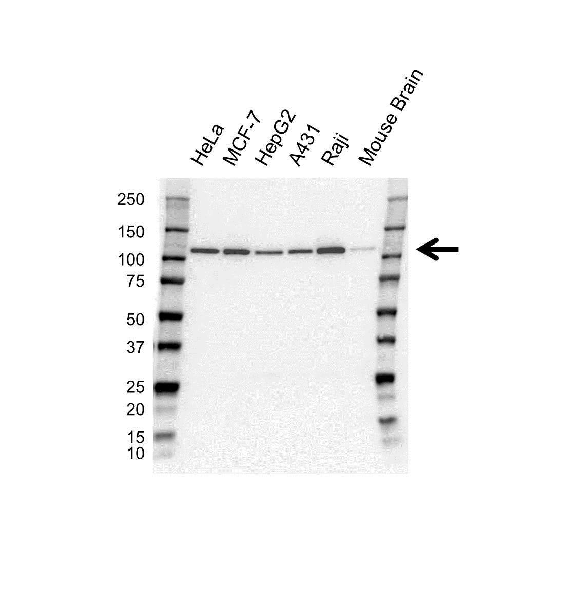 Anti USP16 Antibody (PrecisionAb Polyclonal Antibody) thumbnail image 1