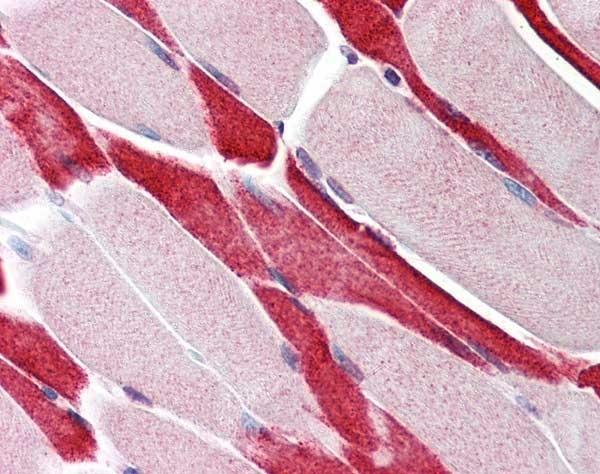 Anti USP7 Antibody gallery image 1