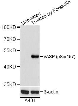Anti VASP (pSer157) Antibody thumbnail image 1