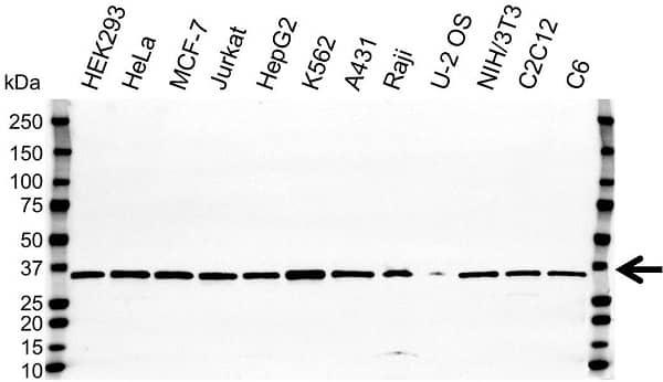 Anti VDAC1 Antibody (PrecisionAb Polyclonal Antibody) gallery image 1