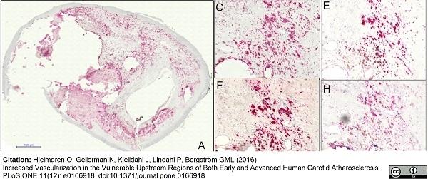 Anti Human VEGF Antibody gallery image 1
