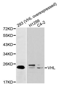 Anti VHL Antibody gallery image 1