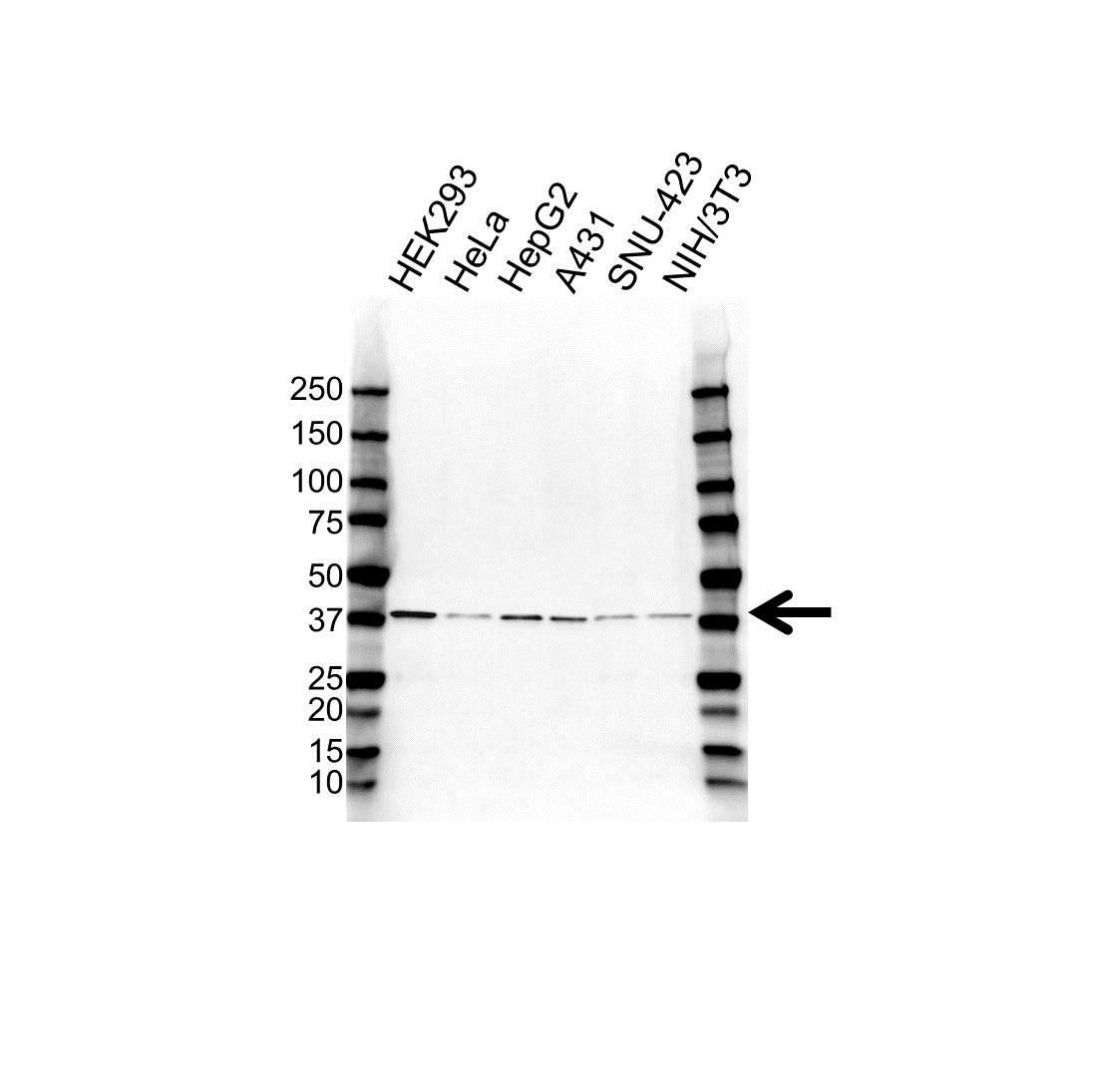 Anti VPS26A Antibody (PrecisionAb Polyclonal Antibody) gallery image 1