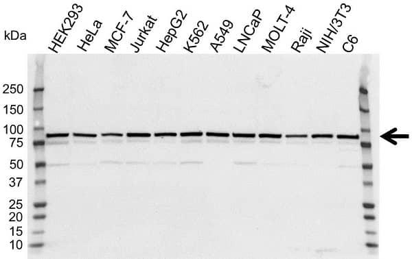 Anti VPS35 Antibody (PrecisionAb Polyclonal Antibody) gallery image 1