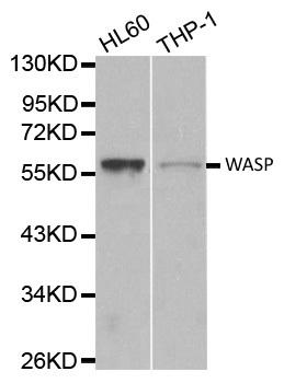Anti WASP Antibody gallery image 1