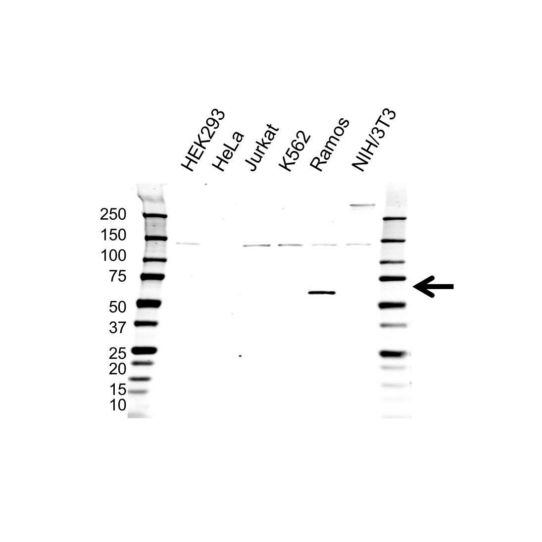 Anti WASP Antibody (PrecisionAb Polyclonal Antibody) gallery image 1