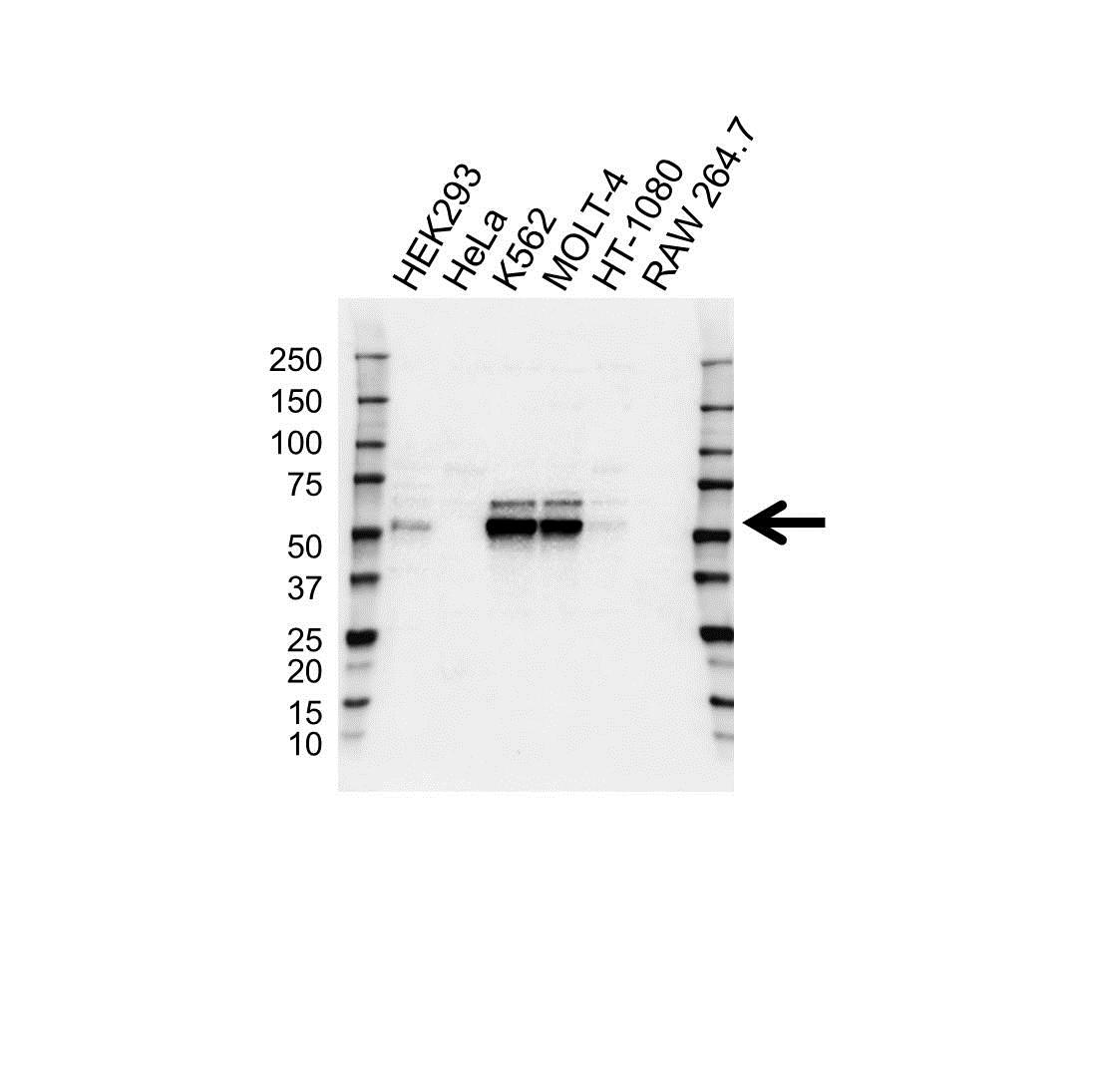 Anti Wilms Tumor 1 Antibody (PrecisionAb Polyclonal Antibody) gallery image 1