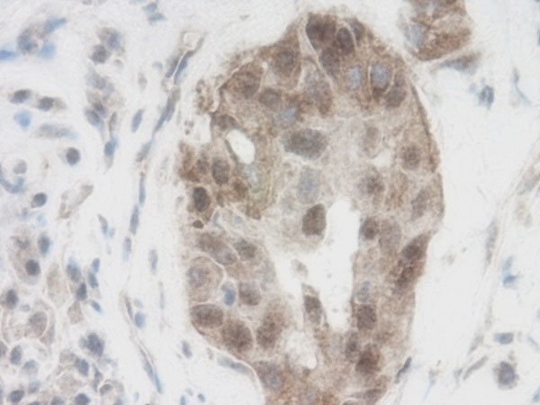 Anti Human WNT-1 Antibody thumbnail image 2