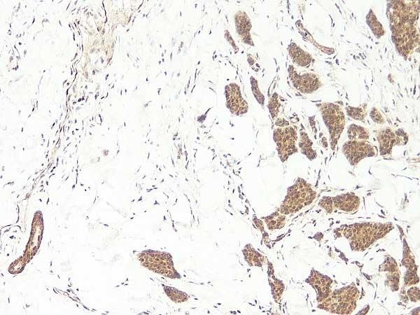 Anti Human WNT-3a Antibody thumbnail image 1