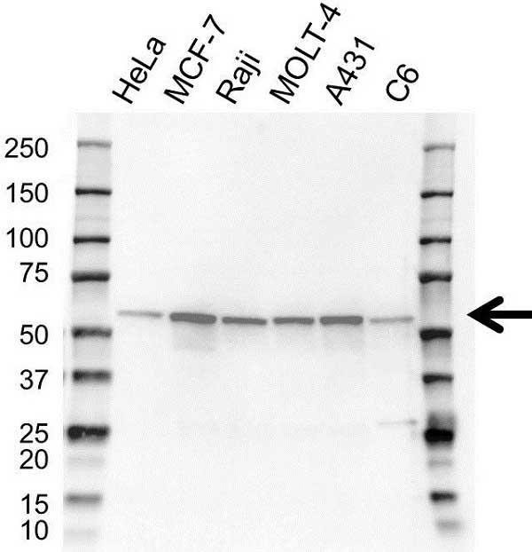 Anti XIAP Antibody (PrecisionAb Polyclonal Antibody) thumbnail image 1