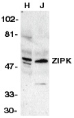 Anti Human ZIP Kinase (aa279-298) Antibody thumbnail image 1