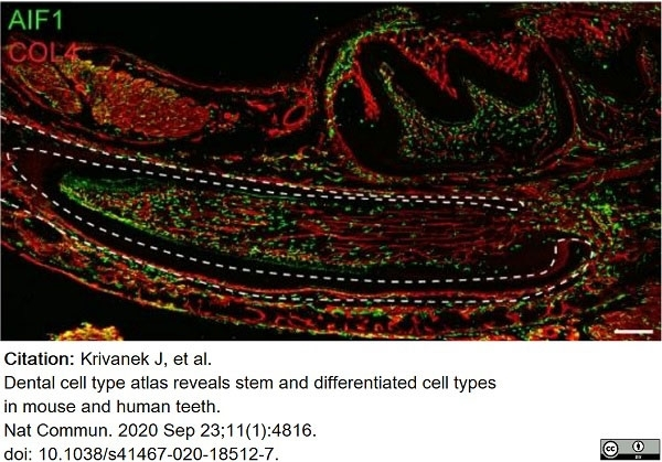 Anti Mouse Collagen IV Antibody thumbnail image 16
