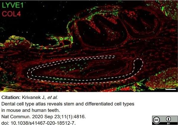Anti Mouse Collagen IV Antibody thumbnail image 17