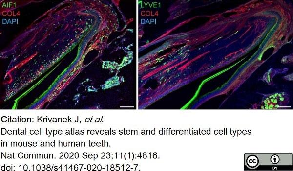 Anti Mouse Collagen IV Antibody thumbnail image 18