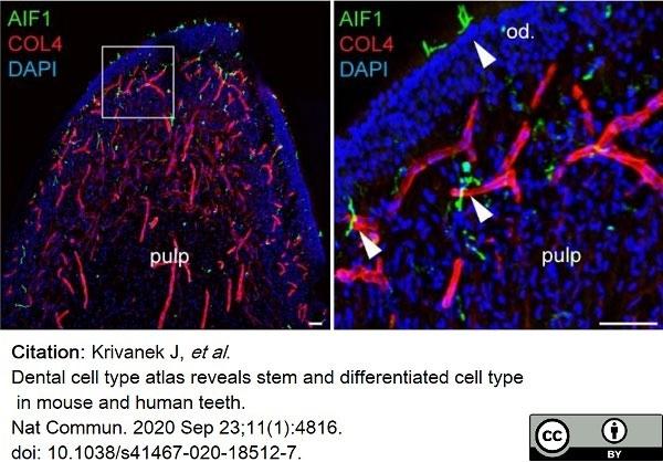 Anti Mouse Collagen IV Antibody thumbnail image 20