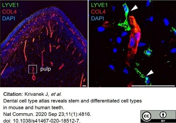 Anti Mouse Collagen IV Antibody thumbnail image 21
