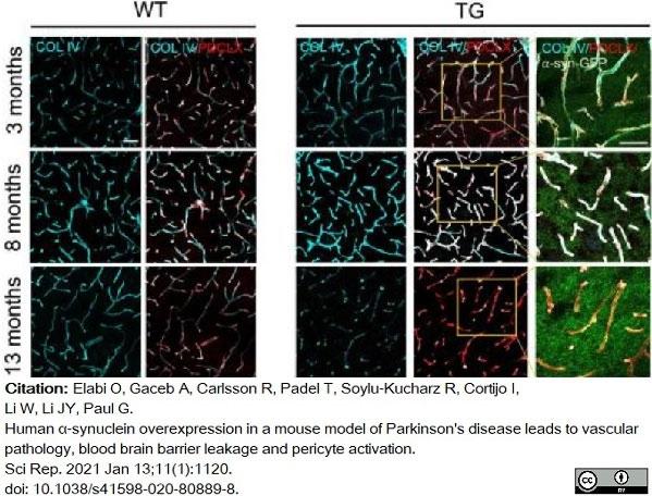Anti Mouse Collagen IV Antibody thumbnail image 22