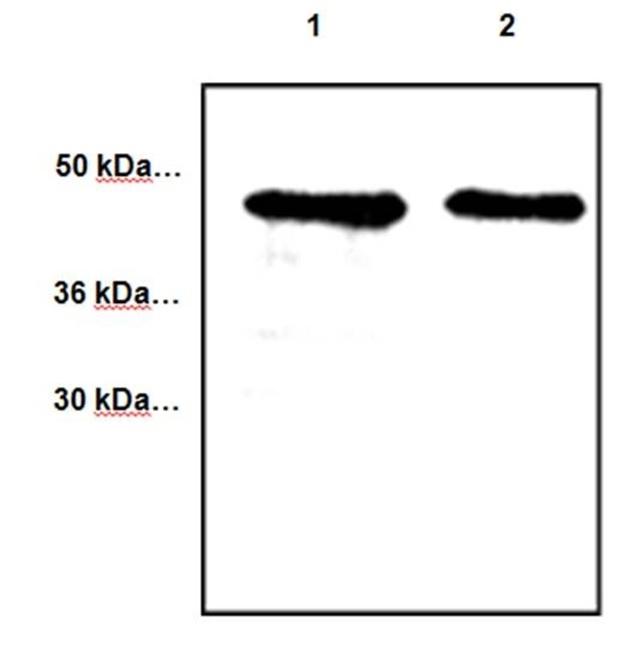 Anti CYR61 Antibody gallery image 1