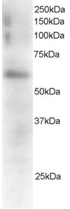 Anti FGR Antibody gallery image 1