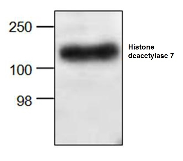 Anti Histone Deacetylase 7 Antibody gallery image 1