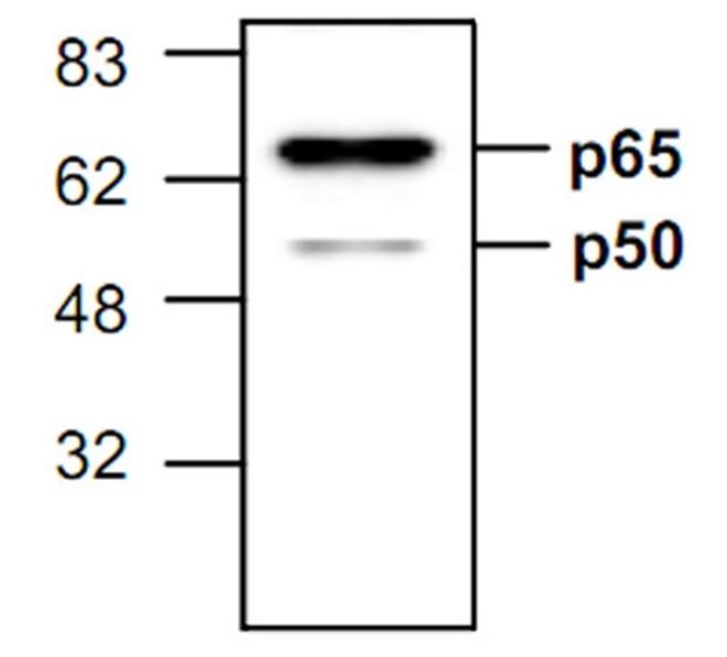 Anti NFkB p65 Antibody gallery image 1