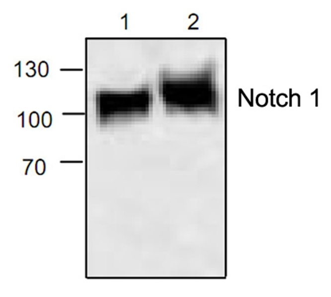 Anti Notch 1 Antibody gallery image 1
