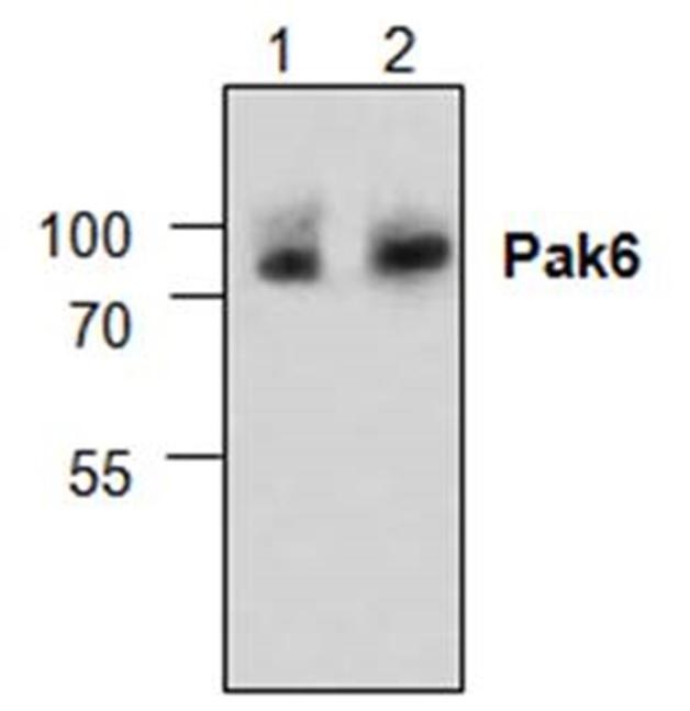 Anti PAK6 Antibody gallery image 1