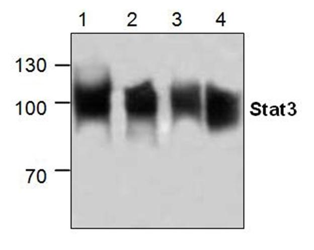 Anti STAT3 Antibody gallery image 1