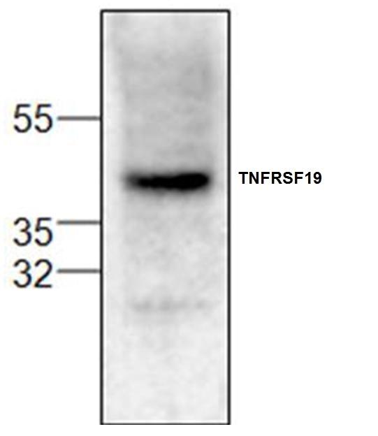 Anti TNFRSF19 Antibody gallery image 1