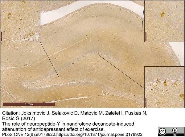 Anti Pig Neuropeptide Y Antibody gallery image 1