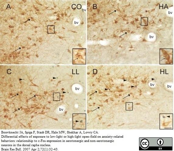 Anti Rabbit Tryptophan Hydroxylase Antibody thumbnail image 2
