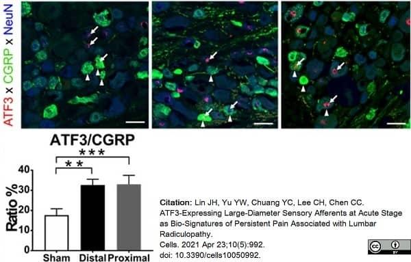 Anti Rat Calcitonin Gene-Related Peptide Antibody thumbnail image 7