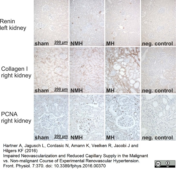 Anti Rat Collagen I Antibody gallery image 1