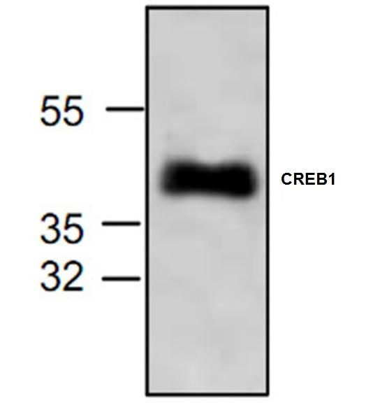 Anti CREB1 Antibody gallery image 1