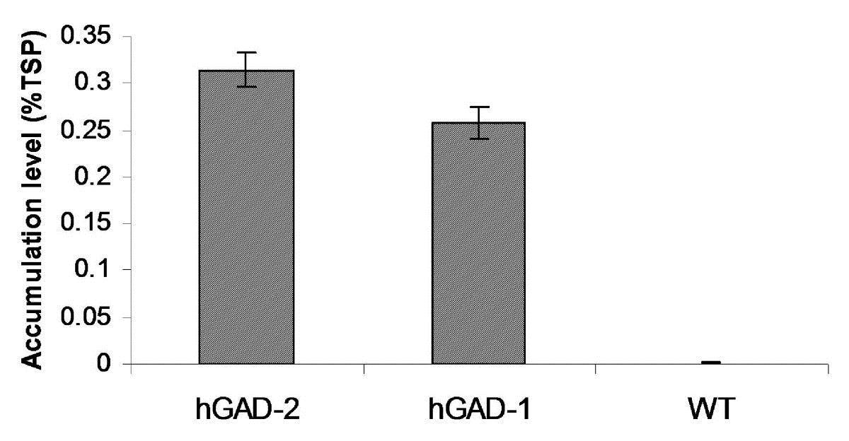 Anti Glutamate Decarboxylase 1/2 Antibody gallery image 1