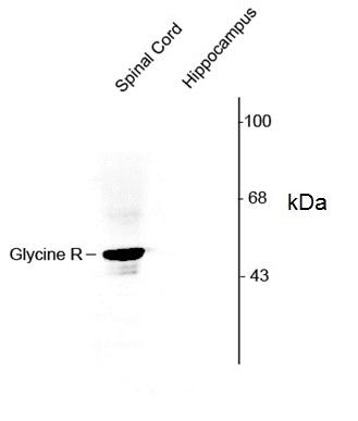 Anti Glycine Receptor Alpha 1/2 (N-Terminal) Antibody gallery image 1