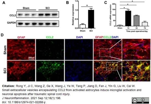 Anti Rat MCP-1 Antibody thumbnail image 2