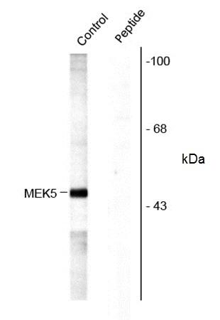 Anti MEK 5 (pSer311/pThr315) Antibody gallery image 1