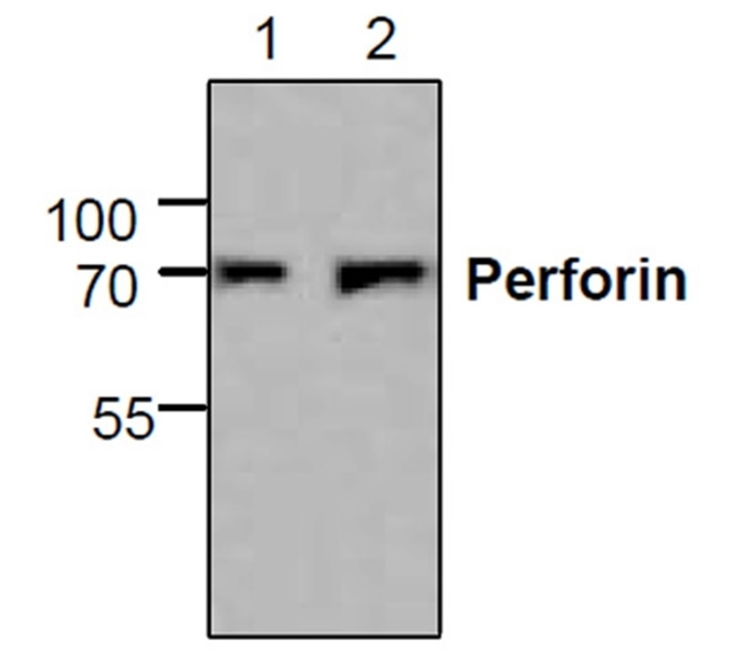 Anti Perforin Antibody gallery image 1