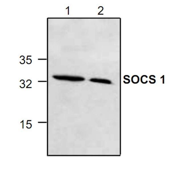 Anti SOCS-1 Antibody gallery image 1