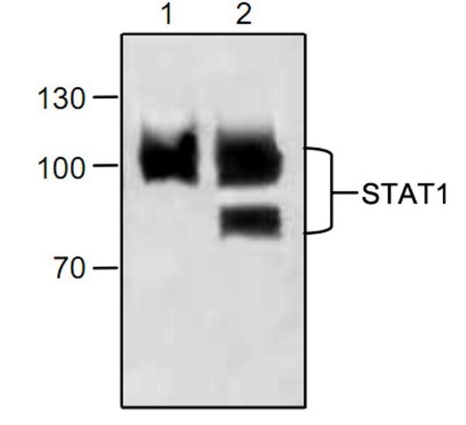 Anti STAT1 Antibody gallery image 1