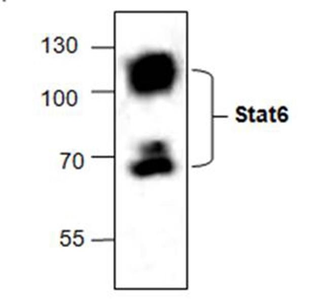 Anti STAT6 Antibody gallery image 1