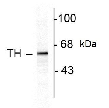 Anti Tyrosine Hydroxylase Antibody gallery image 1