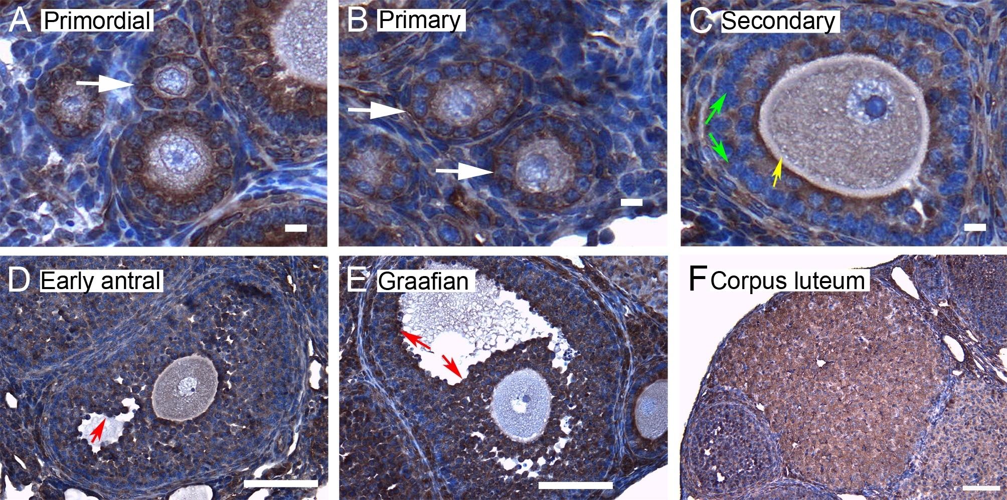 Anti 14-3-3 Beta Antibody thumbnail image 3