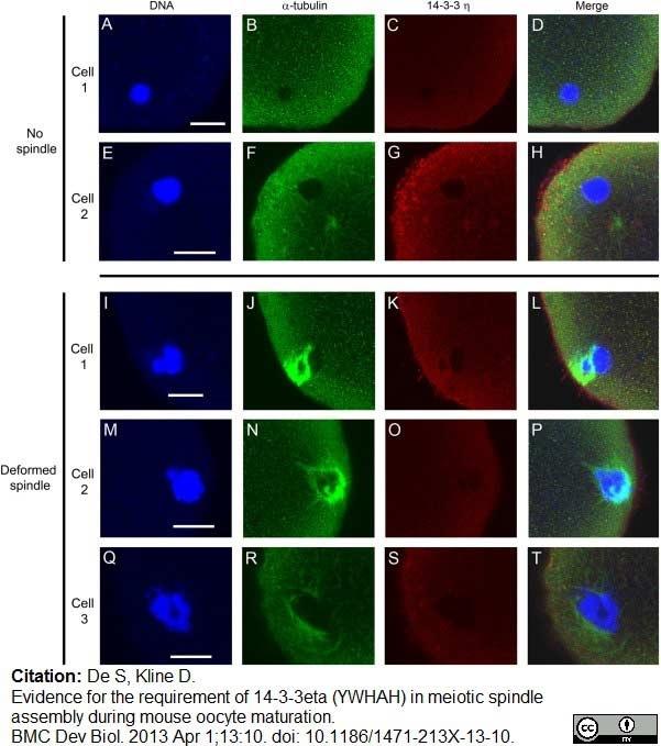 Anti 14-3-3 eta Antibody thumbnail image 11
