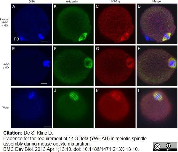 Anti 14-3-3 eta Antibody thumbnail image 12