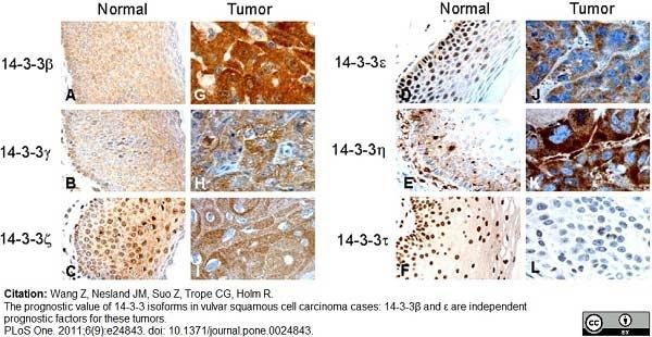 Anti 14-3-3 eta Antibody thumbnail image 7