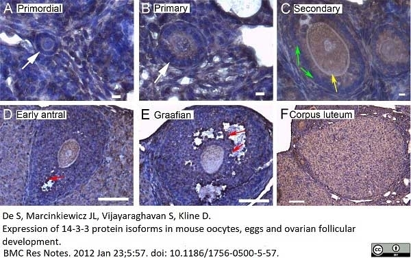 Anti 14-3-3 Sigma Antibody thumbnail image 2