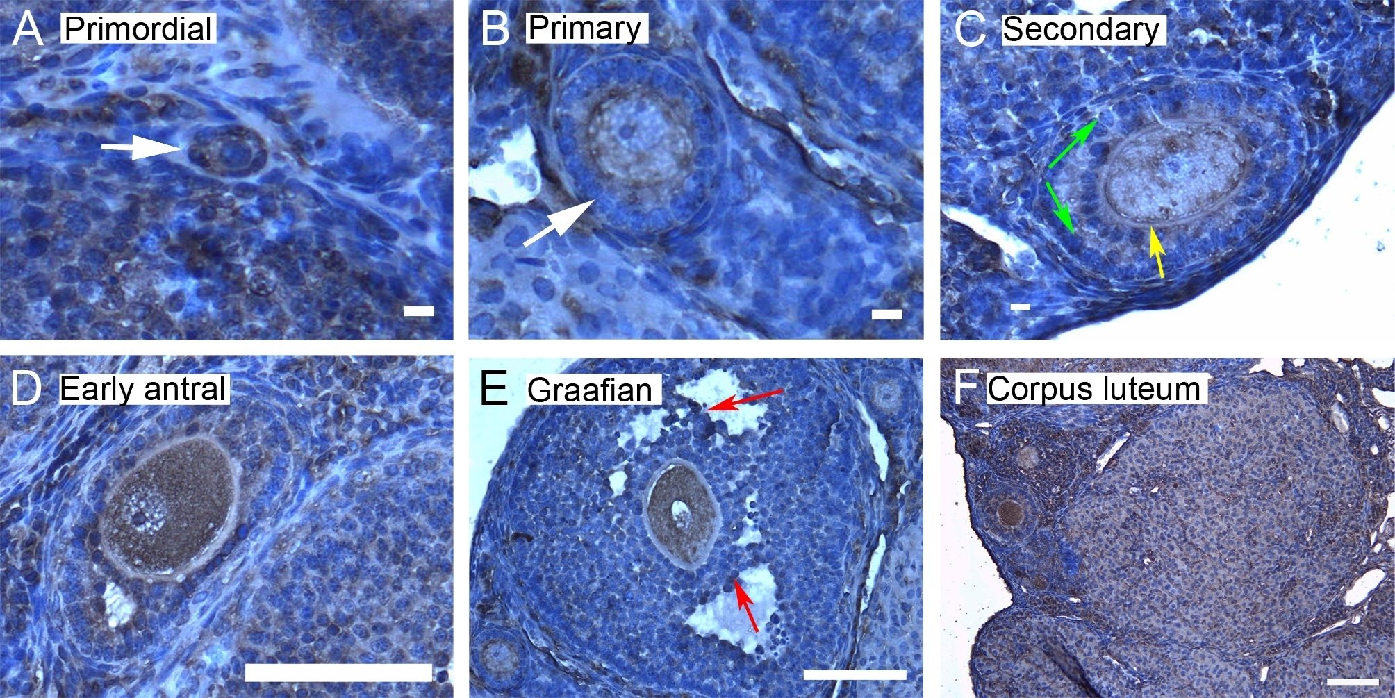 Anti 14-3-3 tau/theta Antibody thumbnail image 3